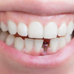 Zubné implantáty a ich variácie